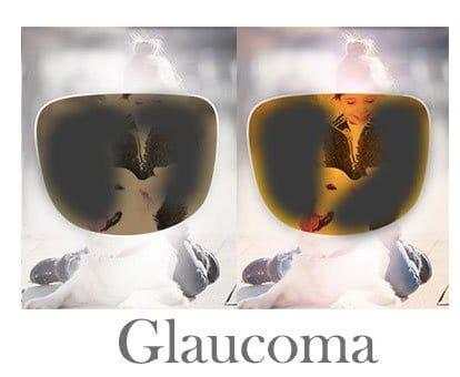 filtro terapéutico para glaucoma